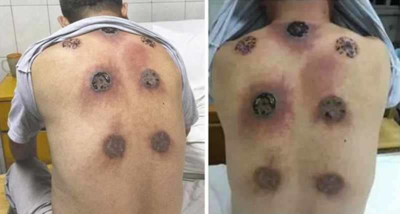 cupping-feature-e1466719915513